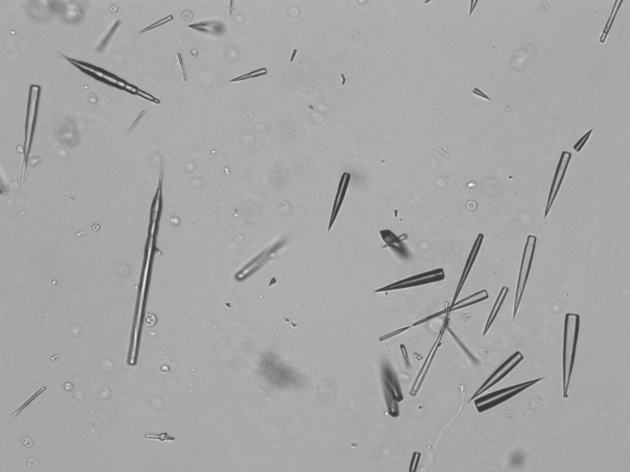 tipos de cristales en orina en gatos