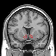 Nucleus accumbens mri pleasure reward center of the brain all nucleus accumbens mri pleasure reward center of the brain all addictions ccuart Images