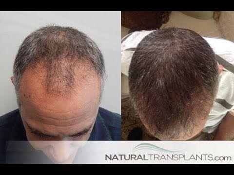 Pin By Hair Transplants Orlando On Hairtransplantsorlando