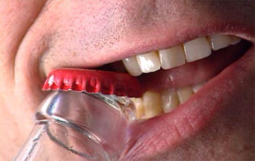 Hal-hal yang dapat Merusak Gigi- Global Estetik Dental Care