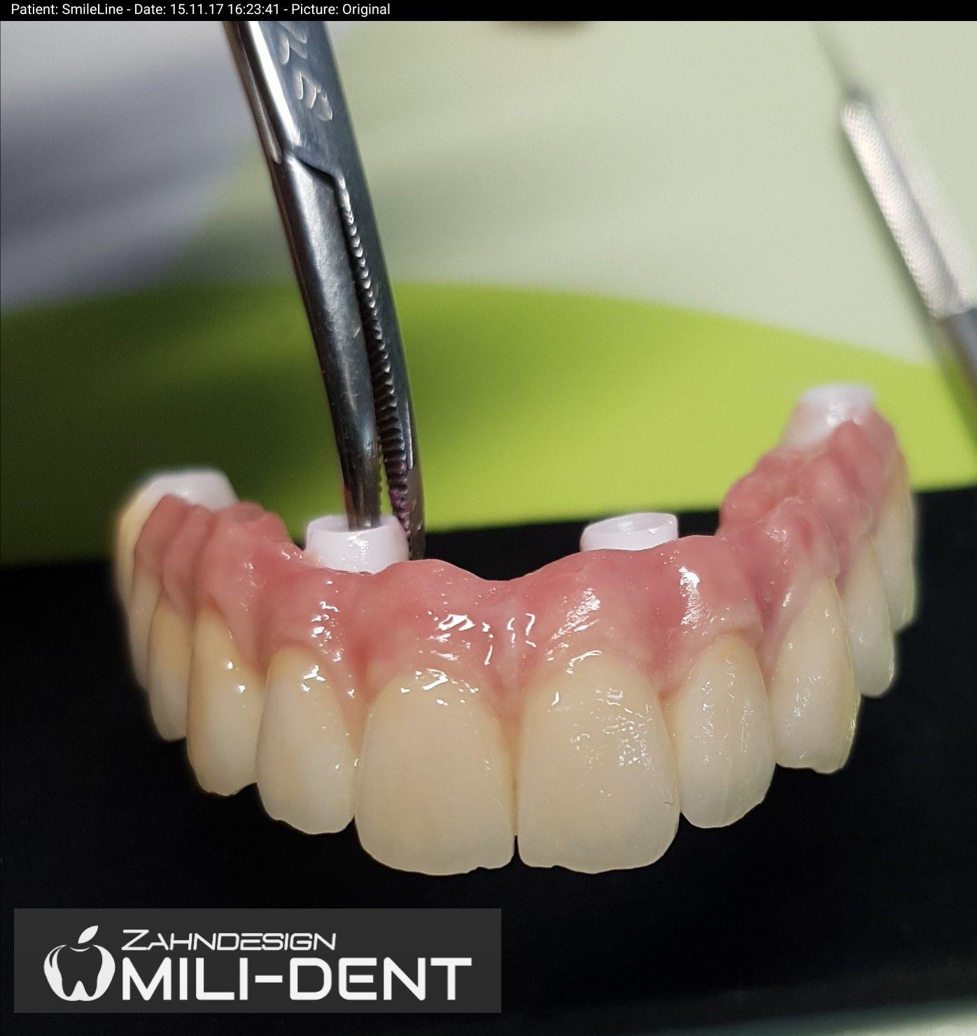 Pin By Milkica Djordjic On Educacion Dental Ceramics Dental Art Dental
