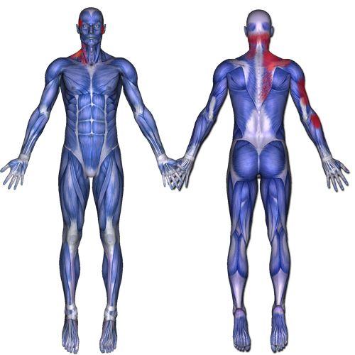 trapezius muscle: stiff neck, headache, eye, jaw, pain. pain, Muscles
