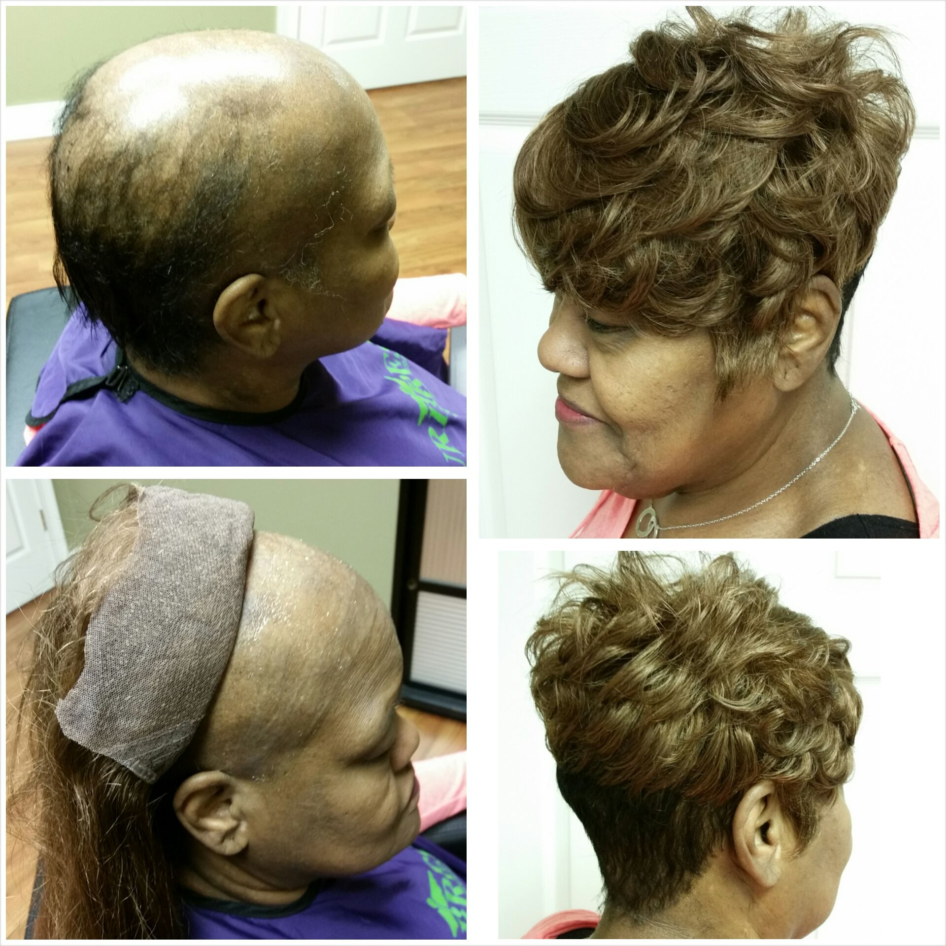 Hair Cranial Prosthesis service for permanent hair loss