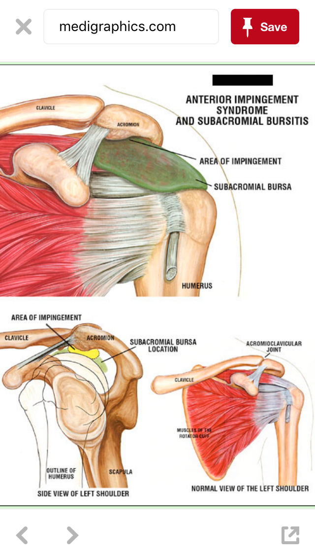Pin by Janet Irvine on REHAB rotator cuffs / shoulders/ neck ...