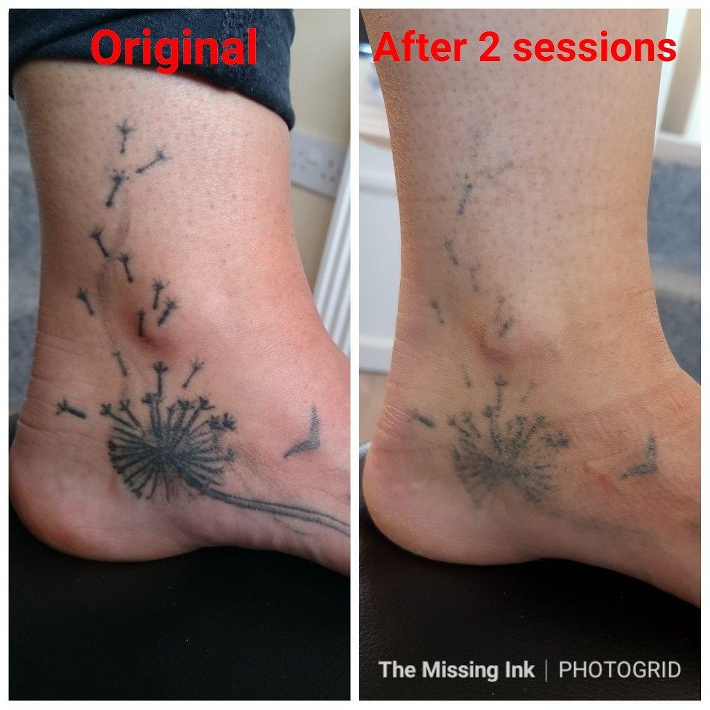 Foot tattoo laser tattoo removal laser tattoo tattoo