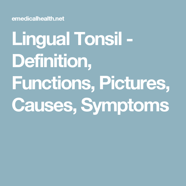 Lingual Tonsil Definition Functions Pictures Causes Symptoms