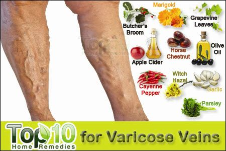 how to remove veins from legs naturally