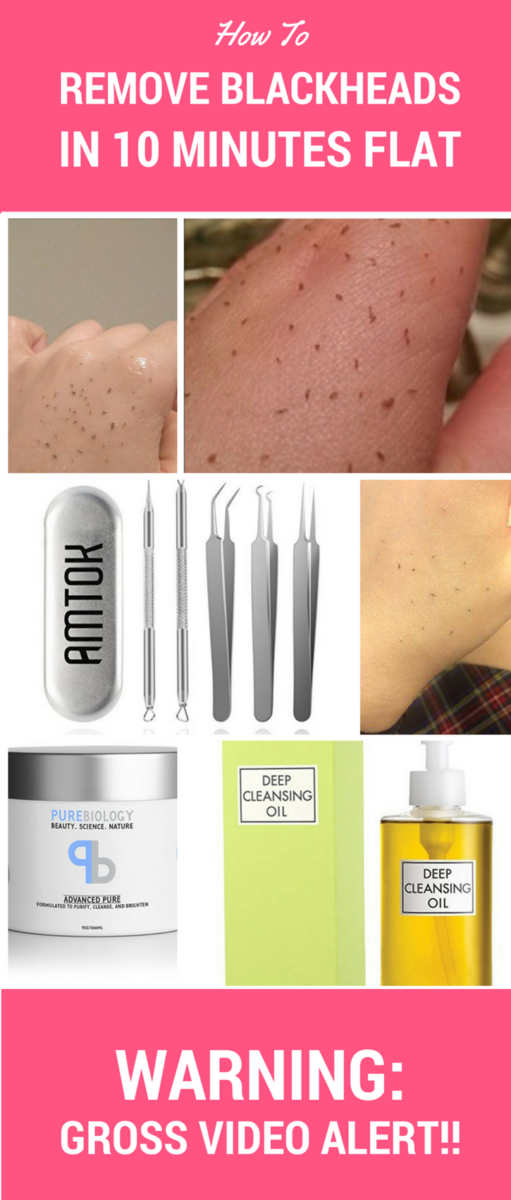Blackheads begone!! Remove blackheads in 10 minute flat with