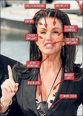 Janice Dickenson....sad how she has ruined her natural beauty.