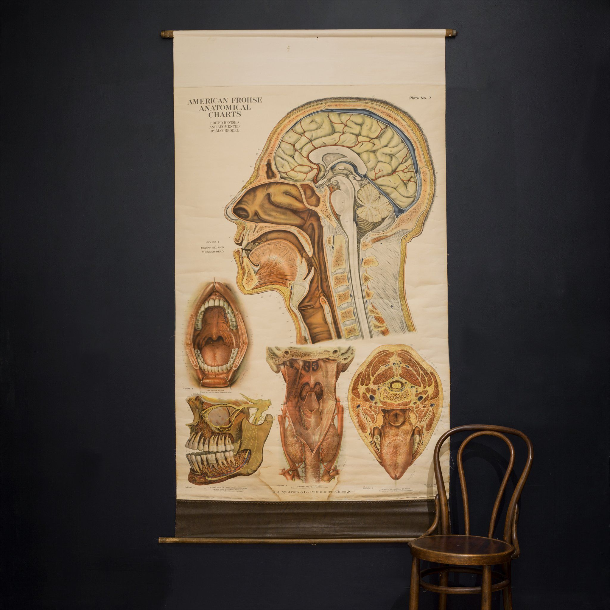 American Frouse Anatomical Chart c.1918 9ce0903792f5d439f582f5e07025d36d