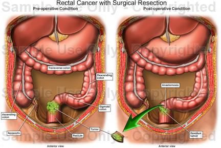 Rectal Cancer With Surgical Resection Medical Illustration Human