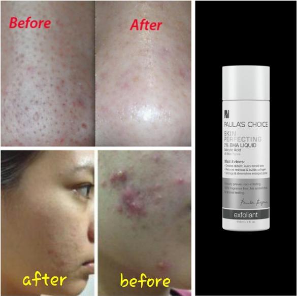 paulas choice skin perfecting 2 bha lotion