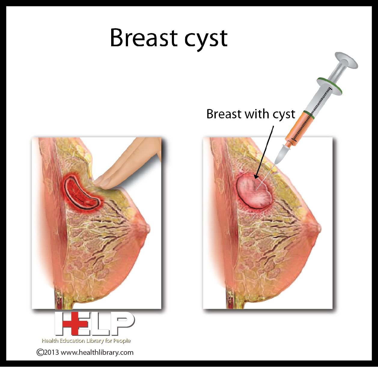 Natural Cure For Breast Cancer
