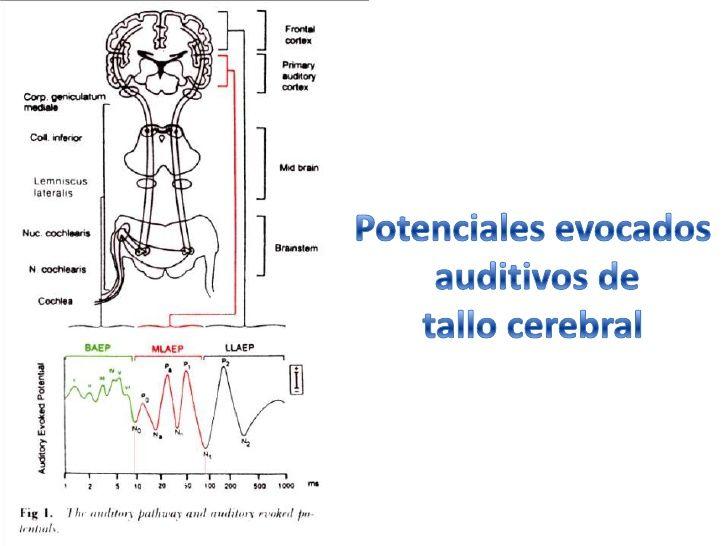 Potenciales Evocados Auditivos De Tronco Cerebral Buscar Con Google Auditivo Tronco Salud Publica