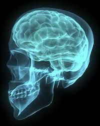 Image result for ct scan pictures | XRAY-SCAN | Brain