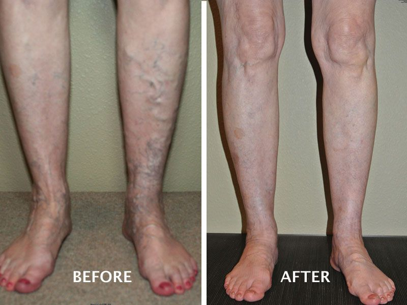 Boise Advanced Vein Therapy, Before And After