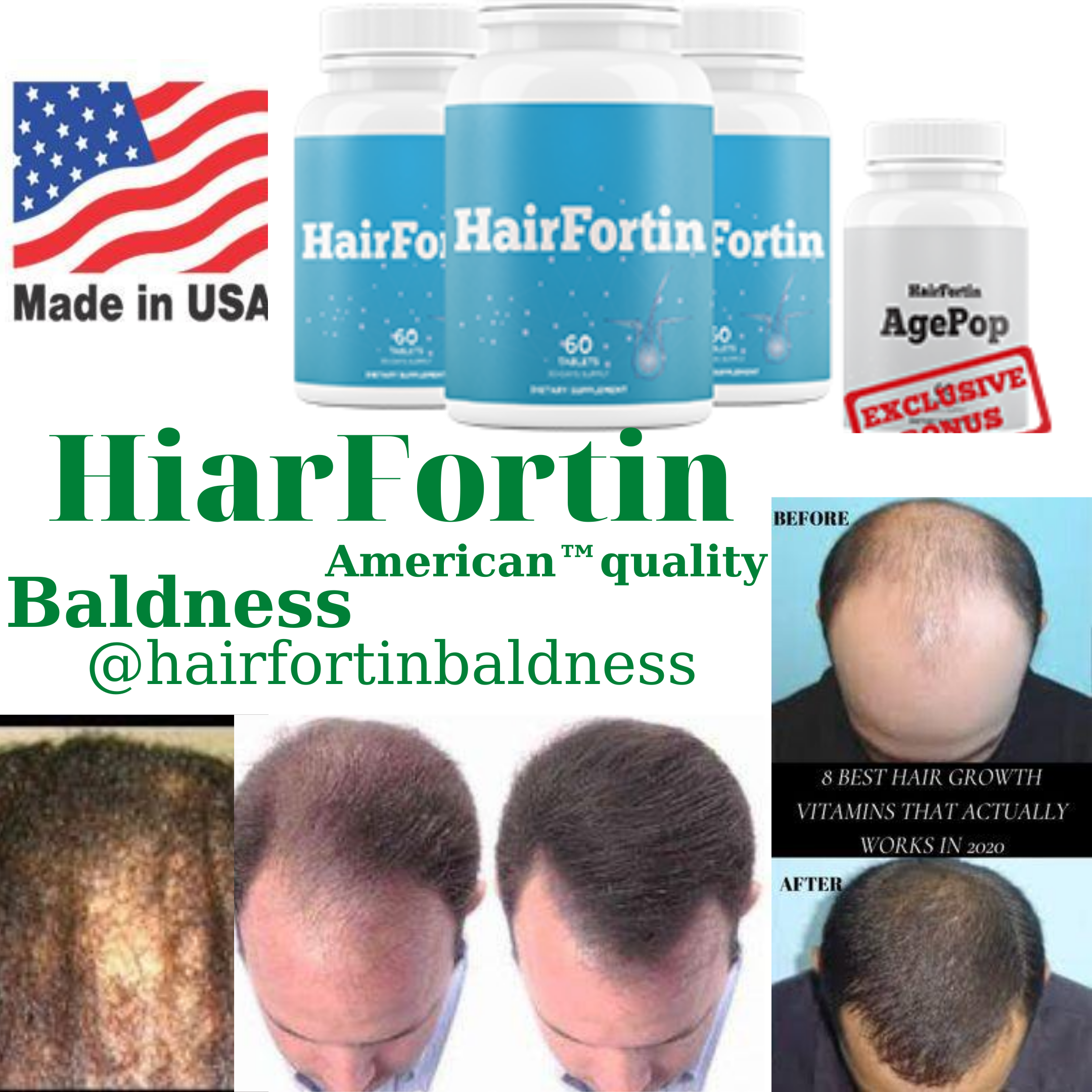 Balding Caused by Clogged Follicles That You Can Easily Clear With This  10-second Monk Ritual | Vitamins for hair growth, Baldness cure, Best hair  growth vitamins