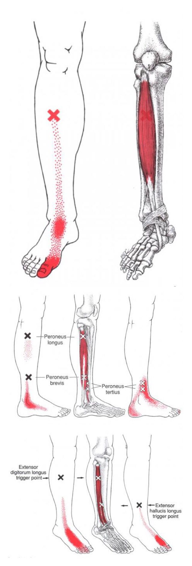 Anterior Ankle Pain | Health ❤ Myofascial Release ❤ Trigger Point ...