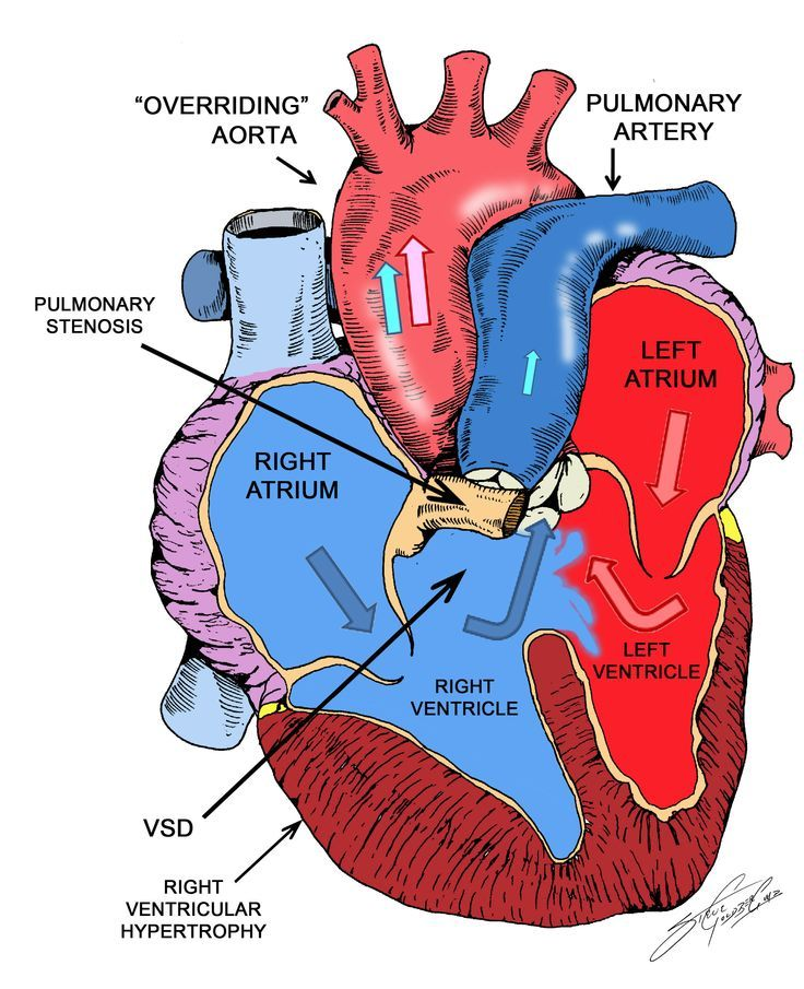 Pin By Nonas Arc On Right Ventricular Hypertrophy Cardiac