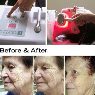 I Want This For Santa Cruz Skin Solutions Led Light Therapy Light Therapy Red Light Therapy