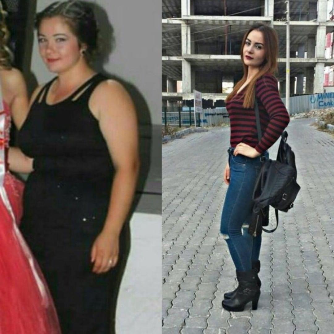 Affected by Pelin Öztekin, Weight Loss in 5 Months Famous actress Pelin Öztekin decided to lose weig...