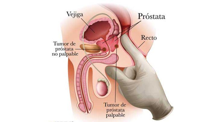 medicamentos genéricos para el cáncer de próstata