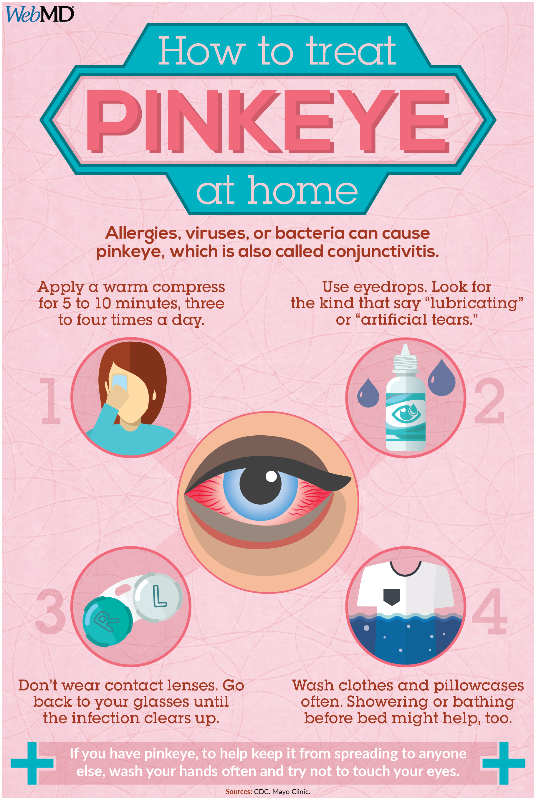 How to Take Care of Pinkeye at Home | Parenting | Pink ... - photo#32