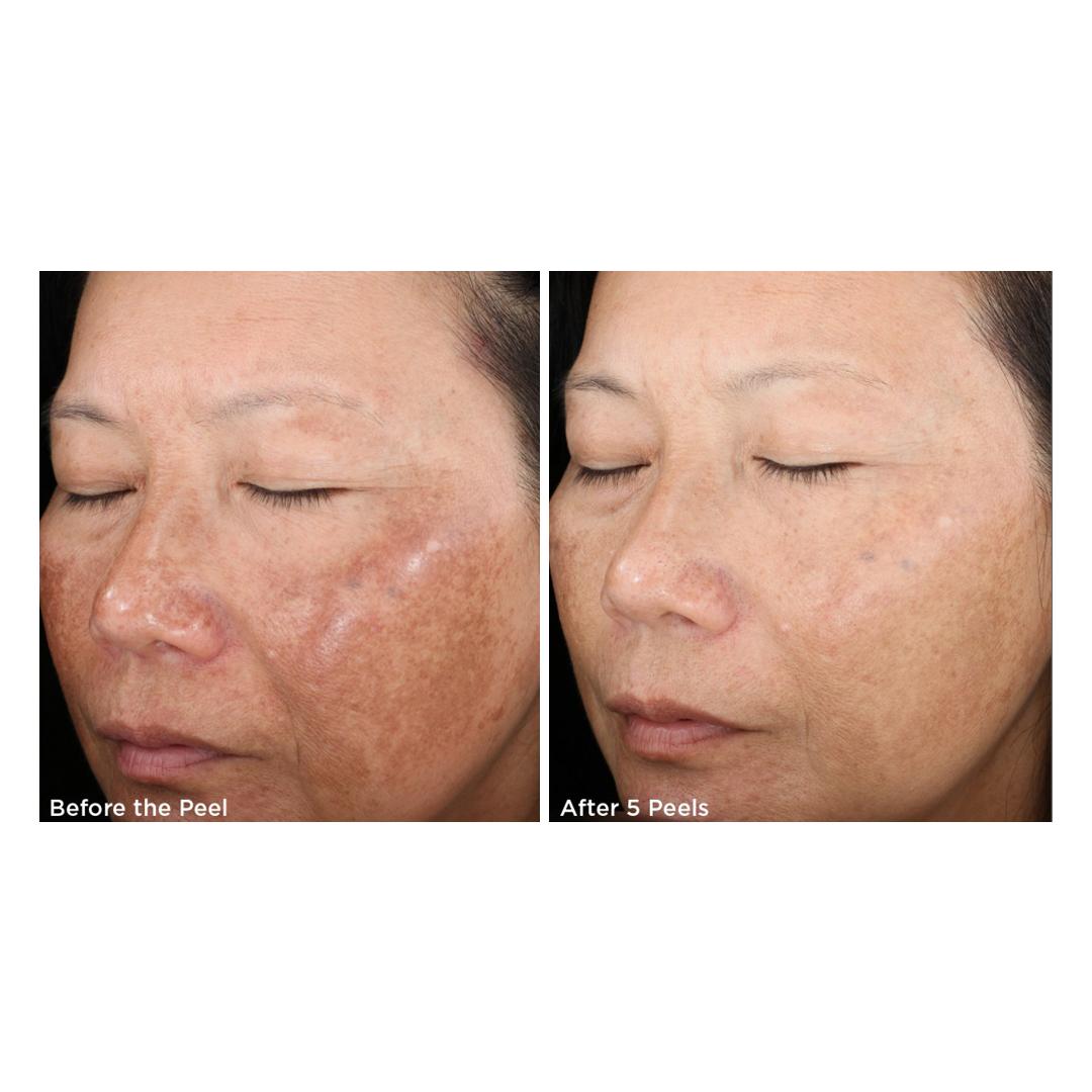 Before & After SkinMedica Rejuvenize Peel http