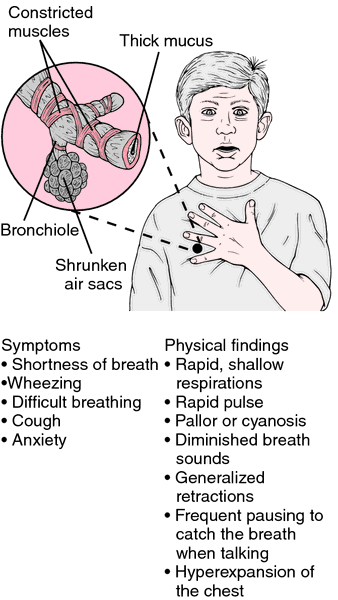 Information About Asthma And The Symptoms It Entails Beatasthma