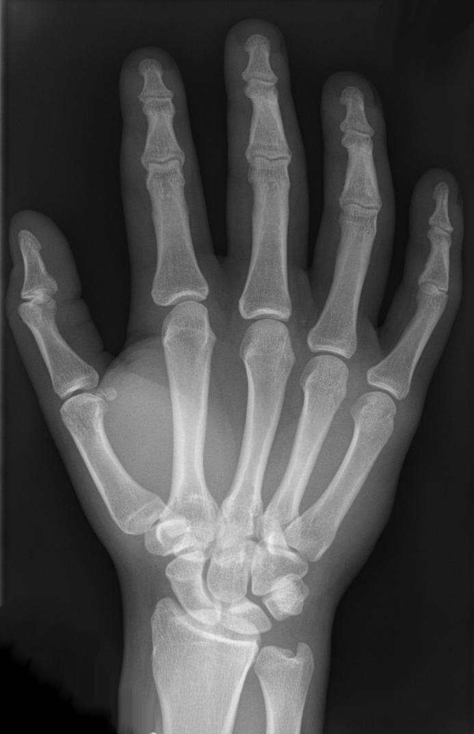 Handskelett.png 693×1,072 pixels | X is for... 2014 - 2018 | Pinterest