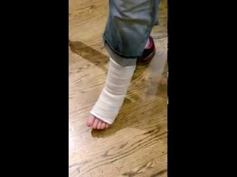 9ca1ac7a742069 On Crutches Bandaged Foot - YouTube   broken ankle   Crutches, Leg ...