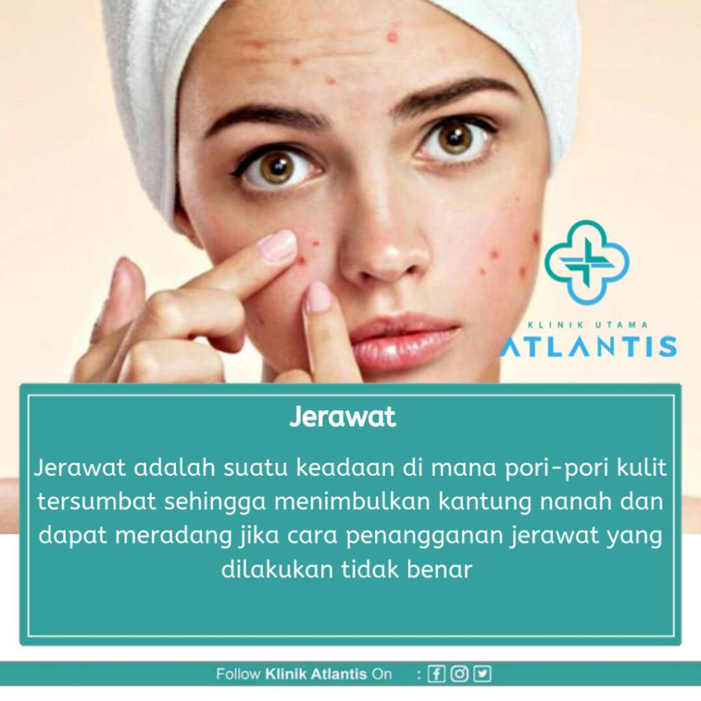 Jerawat Atlantis Kedokteran Gigi Kulit