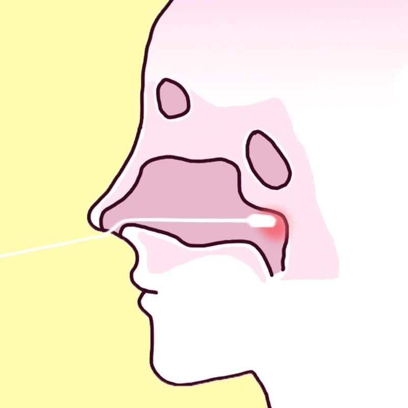 慢性上咽頭炎 ツボ