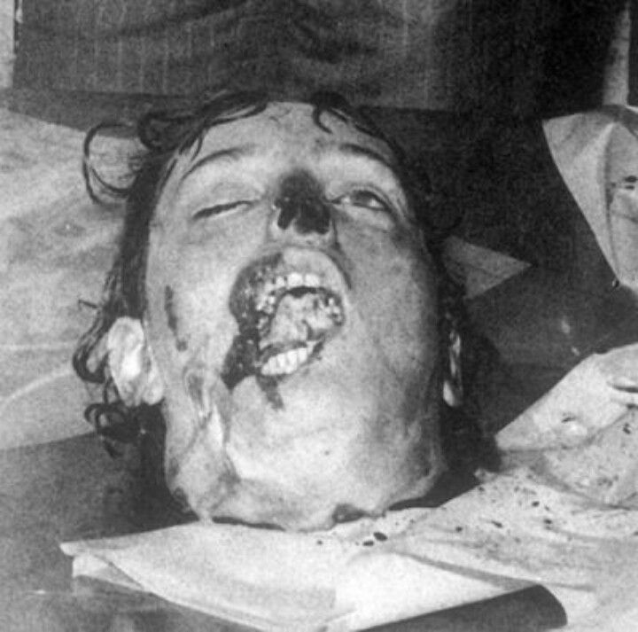 Issei Sagawa victim after being cannibalized, dismembered, packed ...