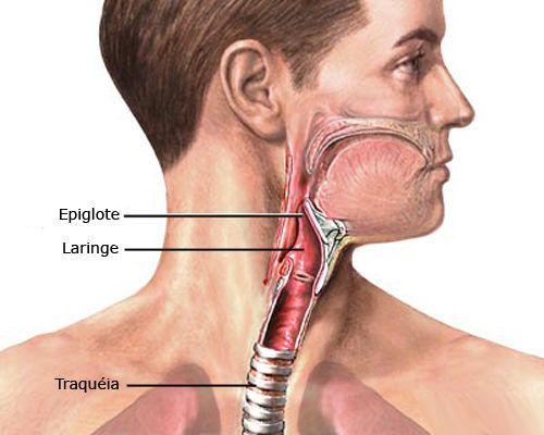 câncer de laringe