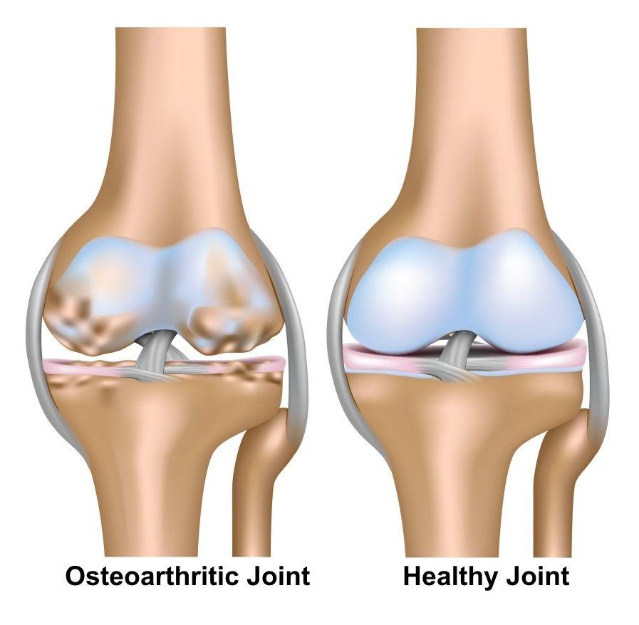 térdízület osteoarthrosis