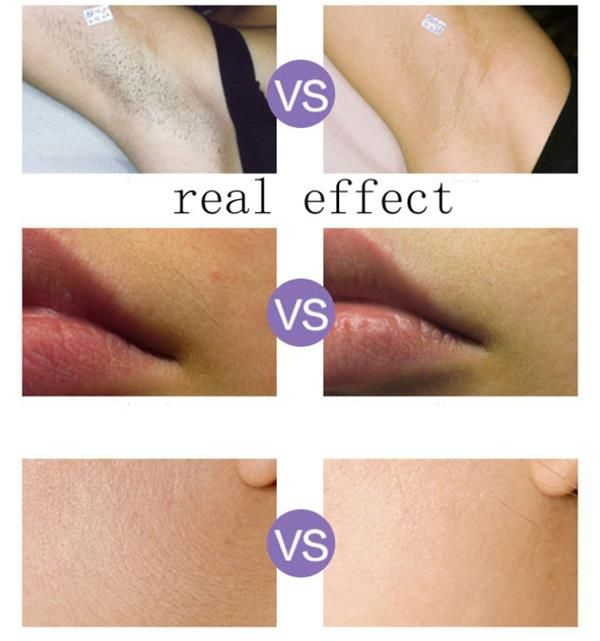 kemei ipl laser hair reduction whole body epilator bikini, Human Body