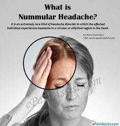 What is Nummular Headache? | Headache Headache causes ...