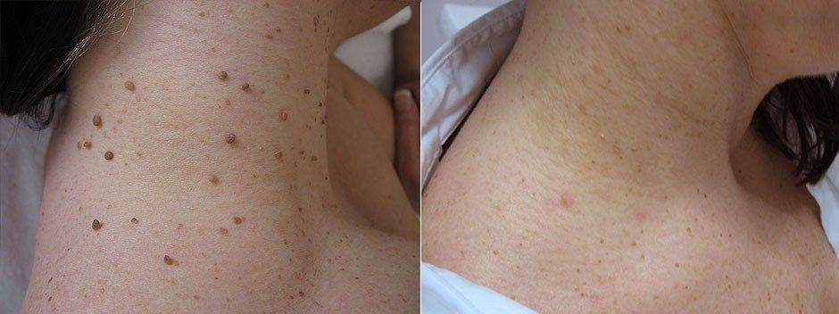 Skin tags are small, soft, benign skin growth. They are not harmful for your health Usually skin tags appear on our neck, eyelids, armpits, groin folds and under breasts. Many people face difficulties