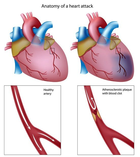 Anatomy of a heart attack | Heart Disease | Pinterest | Heart attack ...