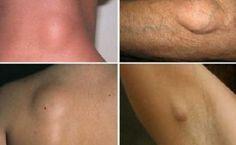 Lipomi: come eliminarli senza ricorrere alla chirurgia