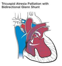 Ta Glenn Shunt Svc Pa Palliative Chd Awareness Congenital Heart Defect Pediatrics
