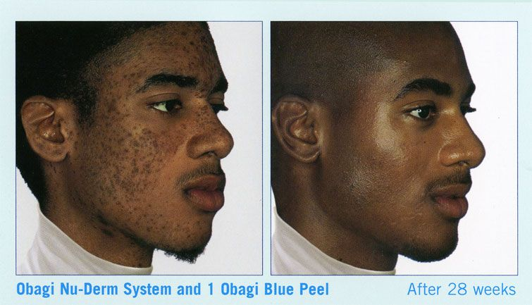 Chemical Peel Befor And After Precondition With Obagi Nu