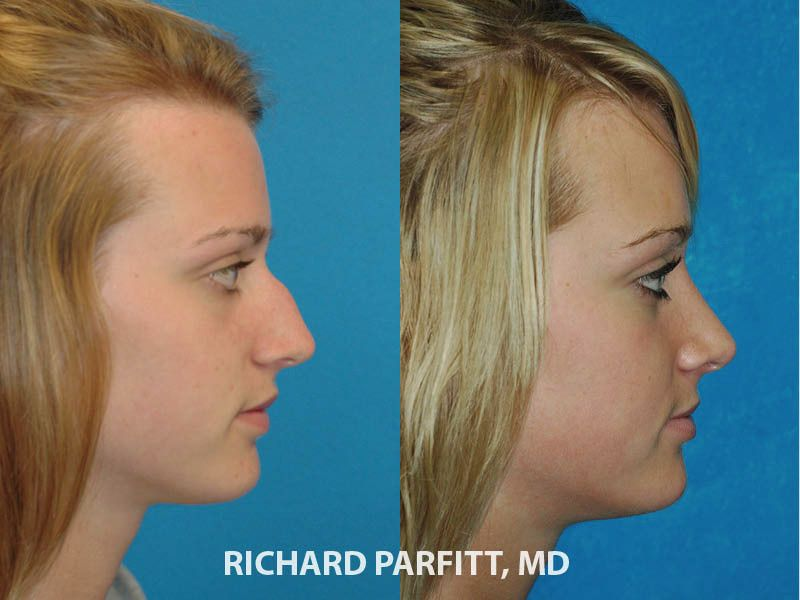Side view before and after rhinoplasty surgery with Dr