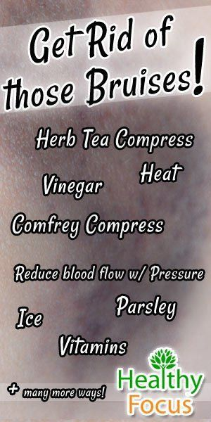 Get rid of the bruises.