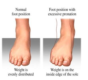 Benefits Of Orthotics Orthotics Benefit Ankle