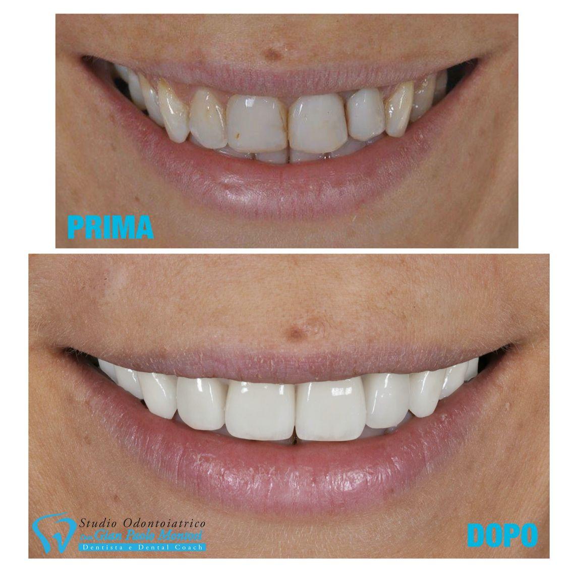 Studio Dentistico Dott. Montosi Gian Paolo Dental Coach Buon lunedì! Grazie alle faccette dentali abbiamo reso la nostra paziente più sicura di sé e felice di avere finalmente il sorriso che ha sempre desiderato. Vuoi avere maggiori informazioni? Chiama lo 059 244464 e fissa un appuntamento per una visita senza impegno, concediti la possibilità di realizzare il tuo sogno. Lo Studio Montosi è qui per aiutarti! #faccettedentali #sorriso #studiodentisticomontosi
