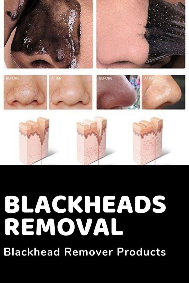 blackhead remover diy, blackheads removal, blackhead mask