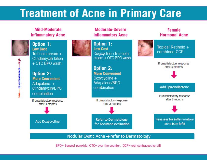 Acne flowchart Acne vulgaris, Acne, Inflammatory