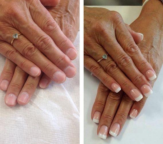 faux ongles gel